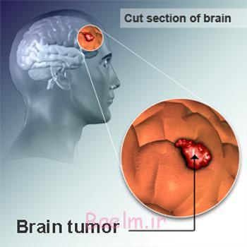 تومور مغزی,علائم تومور مغزی,علایم تومور مغزی