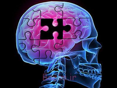 اختلال عملکرد مغزی, زوال عقل