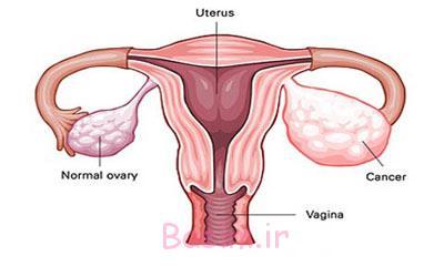 علائم سرطان تخمدان,سرطان تخمدان, نشانه های سرطان تخمدان