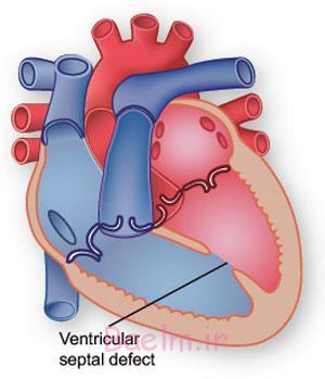 روش های جراحی بستن سوراخ بین بطنی