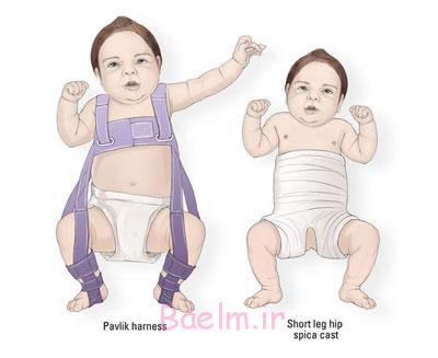 علائم در رفتگی مادرزادی سر استخوان ران و لگن در نوزاد