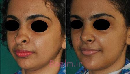 عوارض جراحی بینی, انحراف بینی