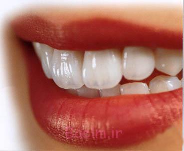 بهترین راه برای تمیز کردن دندانهایتان در خانه، مسواک زدن دقیقتر است