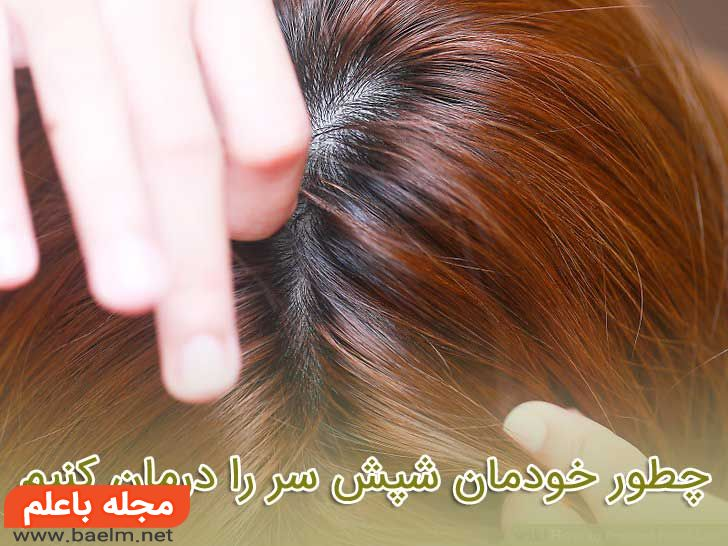 چطور خودمان شپش سر را درمان کنیم