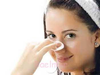دلایل ایجاد جوش های پوستی و روش های درمان جوش صورت