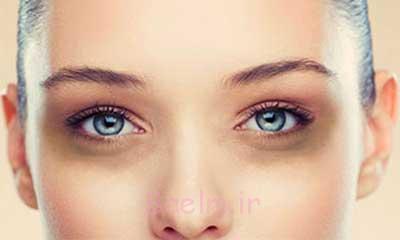 پوشاندن کبودی های زیر چشم با آرایش