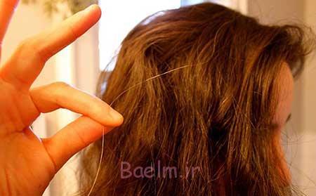 سفید شدن مو | علت اصلی سفید شدن موها بالا رفتن سن است