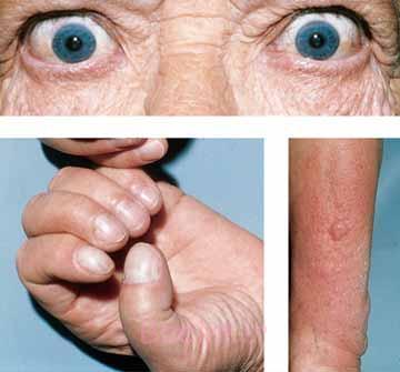 علائم بیماری گریوز Graves
