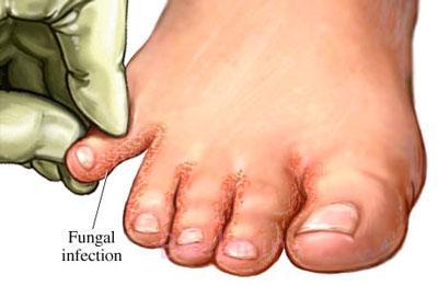 درمان قارچ های پوستی , علائم بیماری قارچ