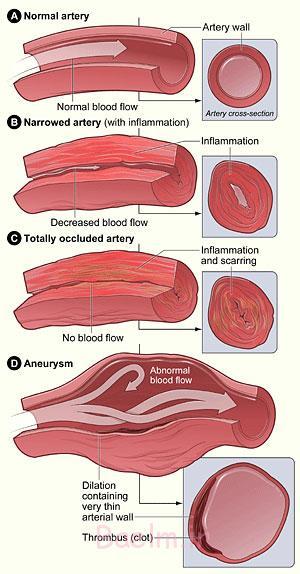 بیماریهای قلبی و عروقی, درمان بیماری