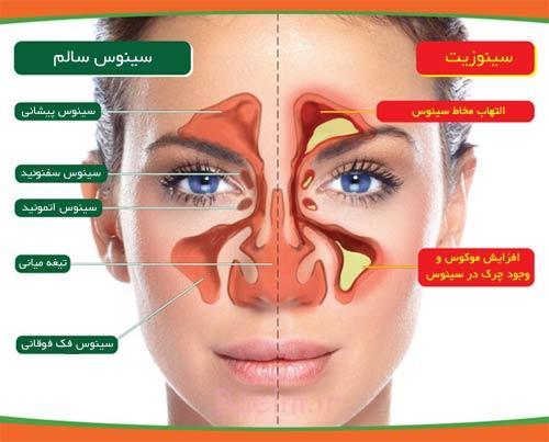 علائم سینوزیت و درمان سینوزیت