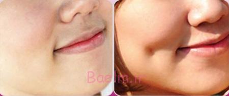 زیبایی چال گونه,برجستگی گونه,جراحی های زیبایی صورت