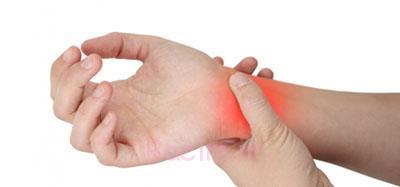 بیماری مفصلی, متخصصان روماتولوژی