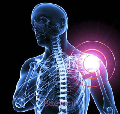 بیماری التهابی, علائم سندروم شانه یخ زده