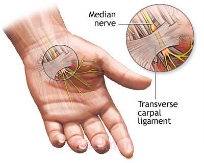 سندرم تونل مچ دست, سندرم کانال کارپال
