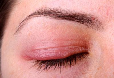 بیماریهای چشمی, بیماری های پوستی