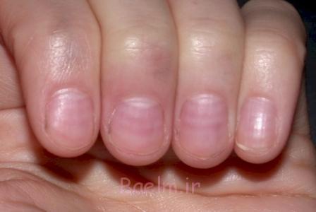 تشخیص بیماریها از روی ناخن