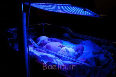 زردی در نوزادان,تشخیص زردی در نوزادان