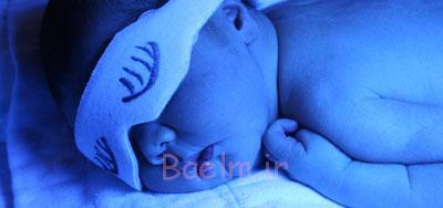 داروی زردی نوزادان,علل زردی نوزادان