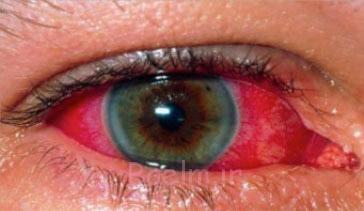 بیماری یوئیت چشم,یوئیت,درمان یوئیت