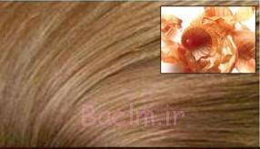 پوست بلط و پیاز برای موهای قهوه ای روشن