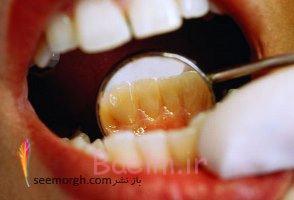 چگونه دندان های سفیدتر و درخشان تری داشته باشیم؟