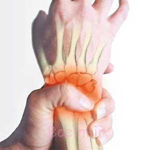 درد مفاصل,پیشگیری از درد مفاصل,راههای کاهش درد مفاصل در زمستان