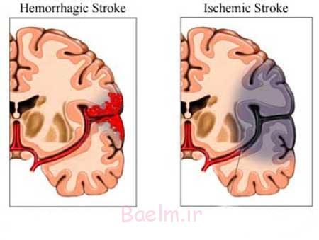 سکته مغزی, انواع سکته مغزی, نشانه های سکته مغزی