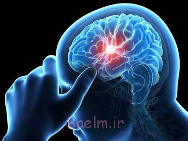 سکته مغزی, علائم سکته مغزی, نشانه های سکته مغزی