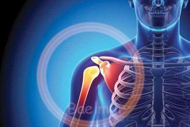 آرتروز, بیماری آرتروز, پیشگیری از آرتروز