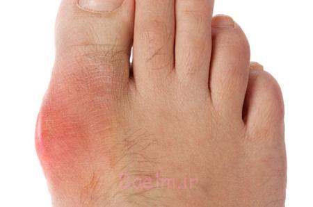 علت دردناک بودن شست پا,بیماری بیماری نقرس, علت بی حسی در پاها