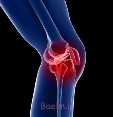 زانو درد, علائم آسیب زانو, نشانه های بیماری زانو