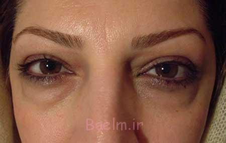 درمان پف شدید زیر چشم