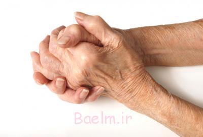 آرتریت مزمن, درمان آرتریت مزمن