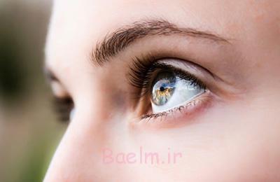 متخصص چشم, مشکلات بینایی