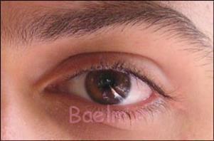 قطره های چشمی گاهی سبب بروز آب سیاه می شوند!