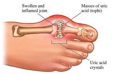 درمان گیاهی نقرس,عوارض بیماری نقرس,حملات نقرس