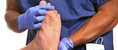 درمان درد نقرس,بیماری نقرس,در مورد بیماری نقرس