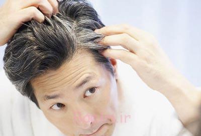 درمان سفیدی مو,سفیدی مو,روش پیشگیری از سفید شدن مو
