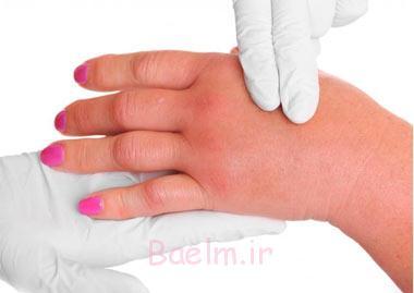علت ورم کردن دستها بعد از ورزش, ورم کردن دست پس از ورزش,ورم کردن دست