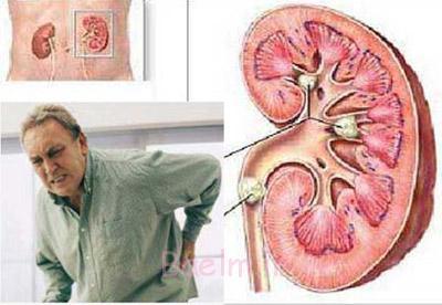 نقرص,داروی گیاهی برای نقرس,بیماری نقرس,