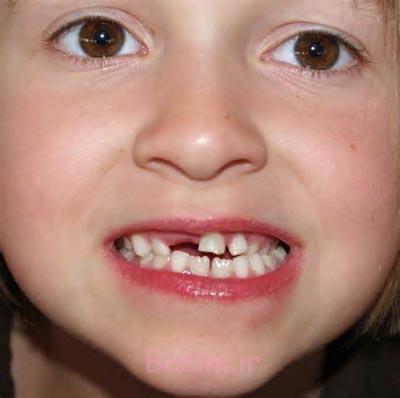 بهداشت دندان های شیری,افتادن دندان های شیری