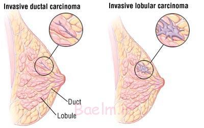 چگونگی انجام ماموگرافی, ماموگرافی چگونه انجام میشود