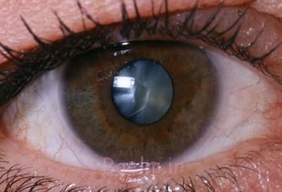 جراحی بینایی, تاری دید