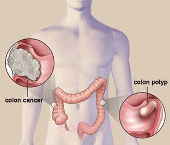 پیشگیری از سرطان روده بزرگ, پیشگیری از سرطان