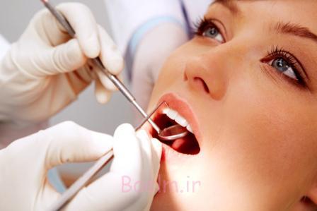 آبسه دندان,علل آبسه دندان,دندانپزشک