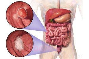 پیشگیری از سرطان روده بزرگ با رعایت این 5 نکته