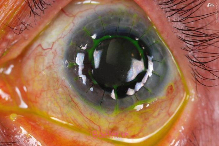 عکس های بسیار شگفت انگیز از جراحی پیوند قرنیه چشم