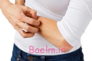عوارض اگزما بر سلامت بدن