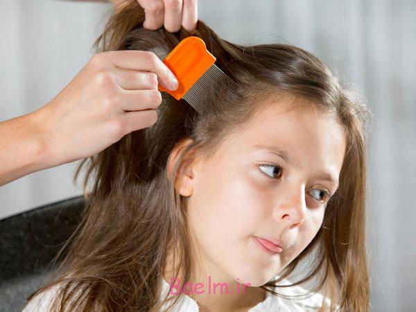 روش های پیشگیری و درمان شپش سر